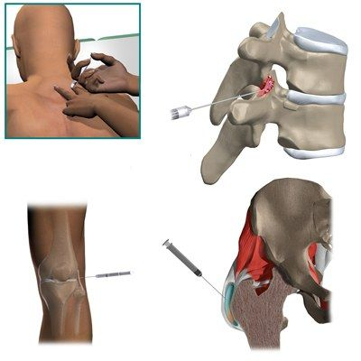 какое лекарство колят в коленный сустав